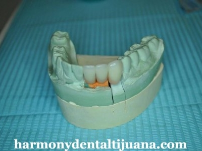 dental implants tijuana